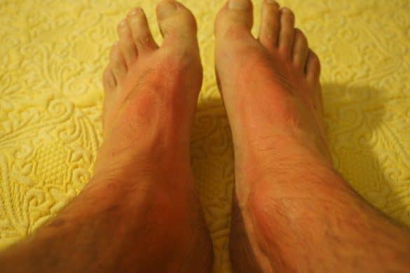 Sonnenallergie Symptome