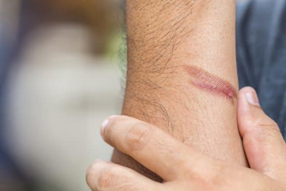 Brandwunde am Unterarm eines Mannes
