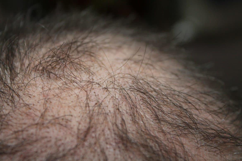 diffuser Haarausfall beim Mann