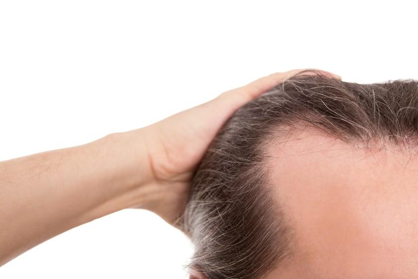 Mann mit Geheimratsecken (erblich bedingter Haarausfall)