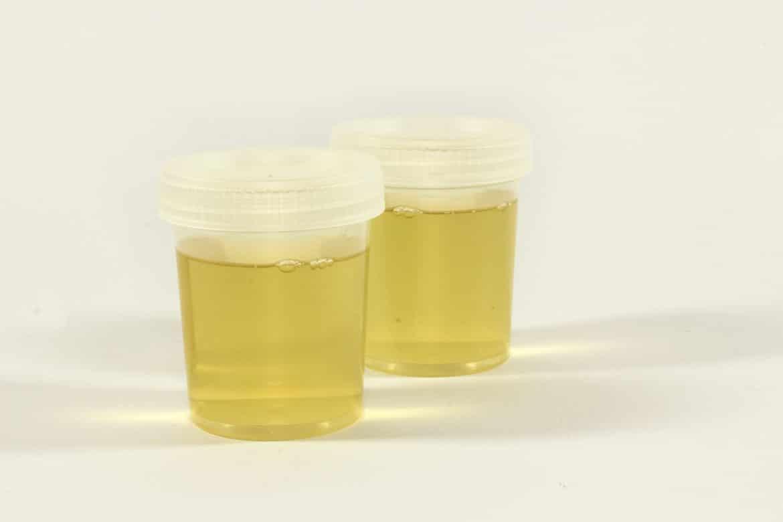 Urin Proben im Becher