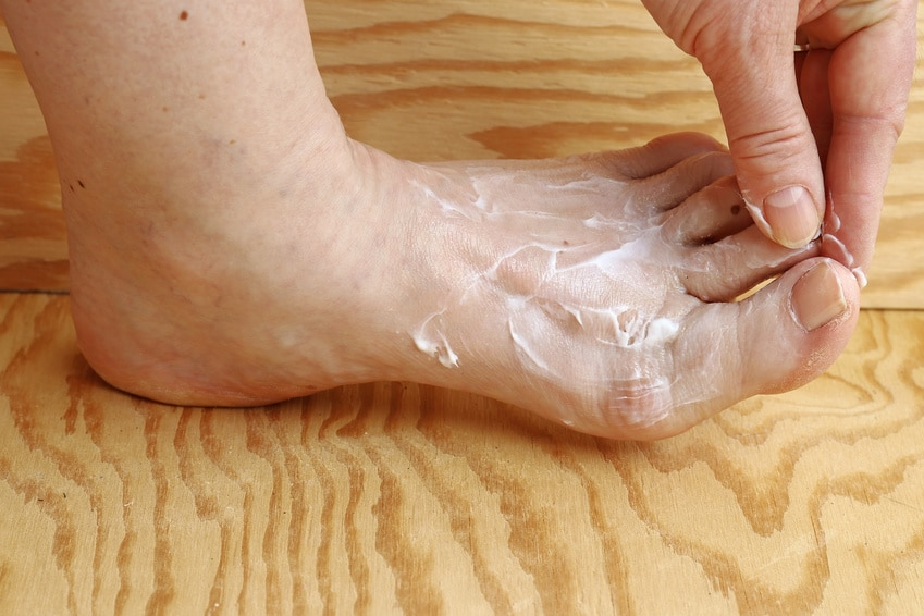 Salbe / Creme an Fuß