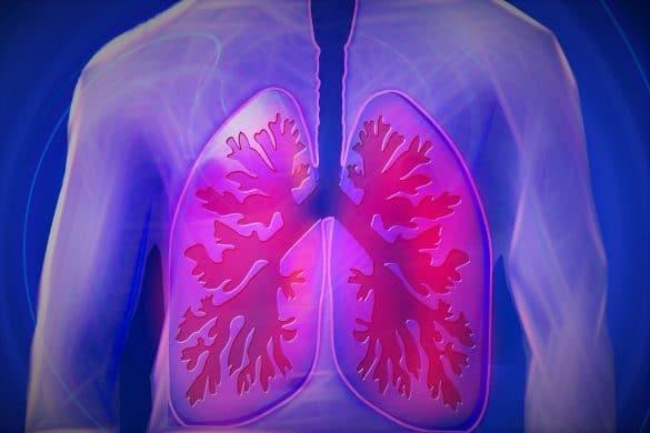 Darstellung einer Lunge und der COPD