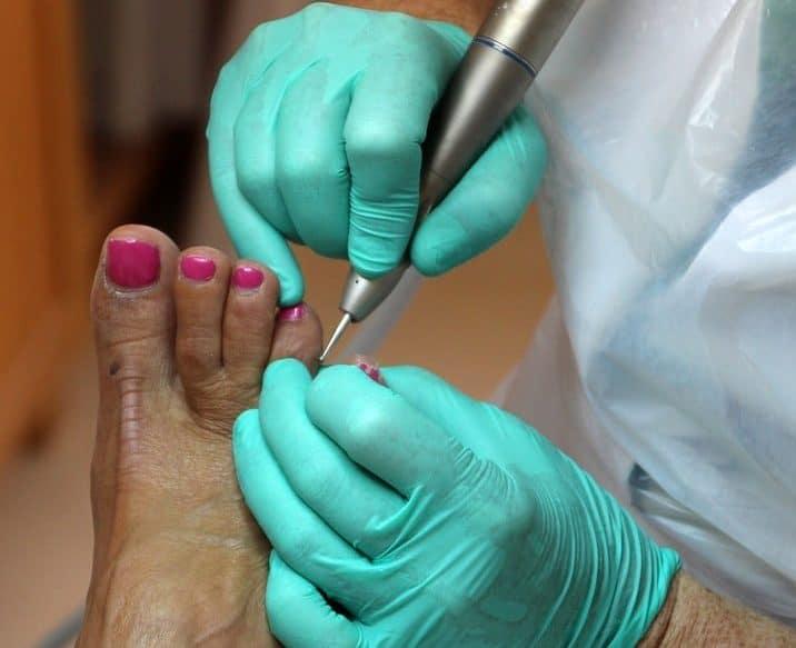 Fußpflege an einem Fuß mit Nagelpilz