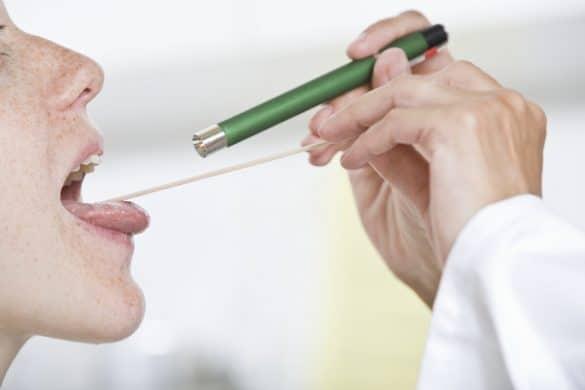 Doktor untersucht Patientin auf eine Mandelentzündung