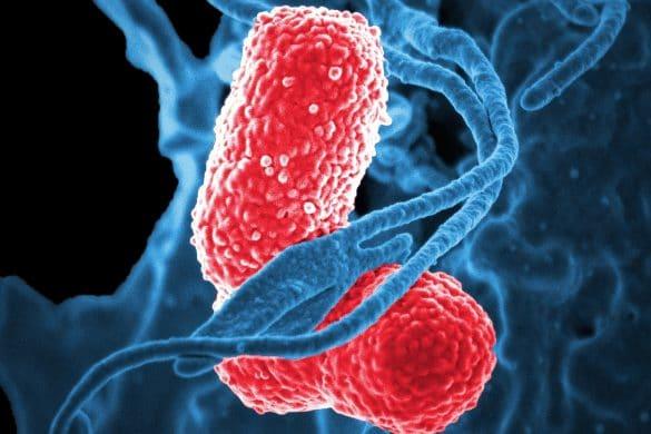 Lungenentzündung Bakterien