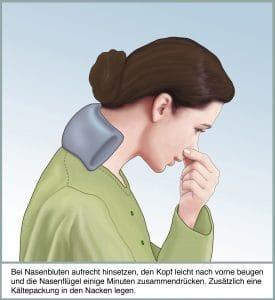 Erste Hilfe bei Nasenbluten