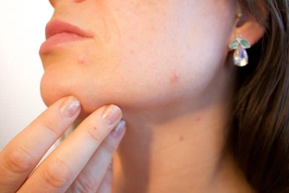 Frau mit Hautausschlag am Kinn