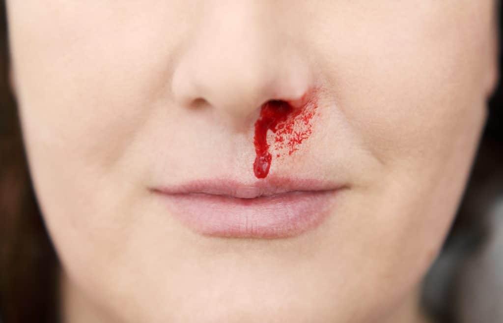 Nasenbluten Krebs
