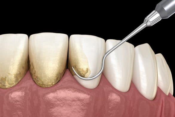 Zahnstein entfernen