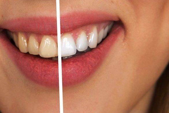 Zahnverfärbungen