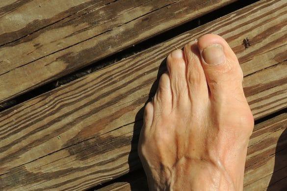 Fuß mit Fehlstellung des großen Zehs
