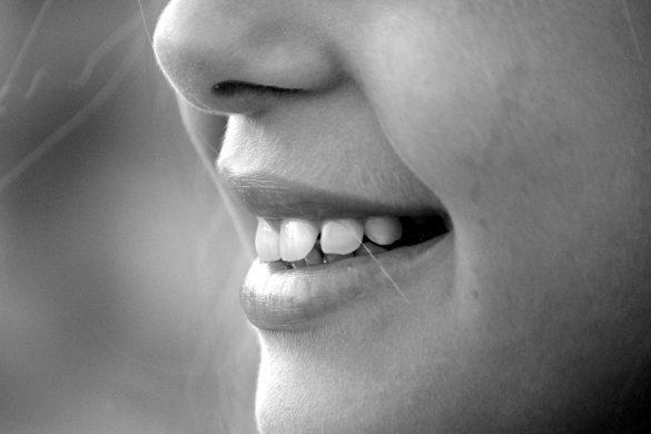 gerissene Mundwinkel, können schmerzhaft beim Essen, Trinken oder auch Reden sein